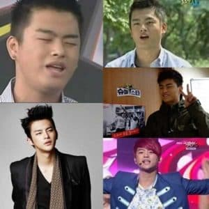 Before After Korean Star Plastic Surgery 1