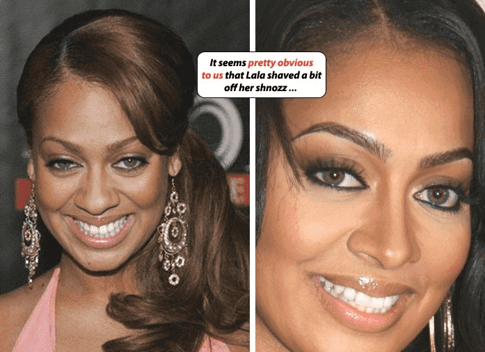 Good Celebrity Plastic Surgery Before And After 1