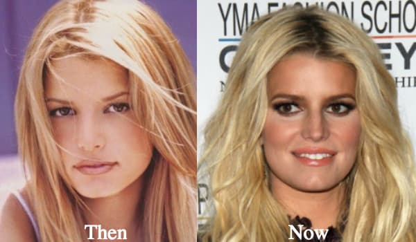 Jessica Simpson Before And After Plastic Surgery 1
