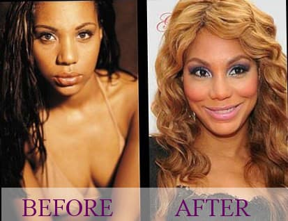 Pictures Of Tamar Braxton Before Plastic Surgery 1