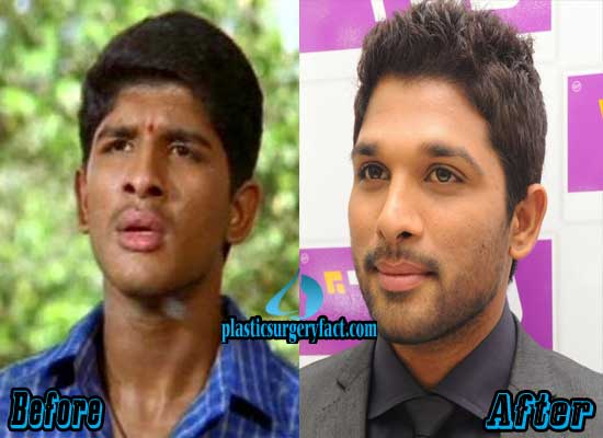 Samantha Before And After Plastic Surgery Photos 1