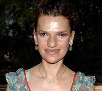 Sandra Bernhard Plastic Surgery Before And After 1