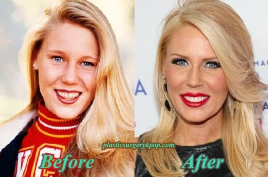 Vicki Gunvalson Before Plastic Surgery And After 1