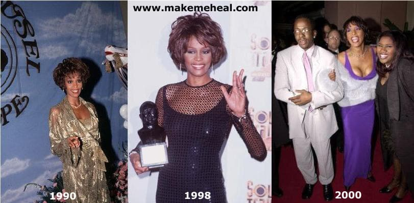 Whitney Houston Before And After Plastic Surgery 1