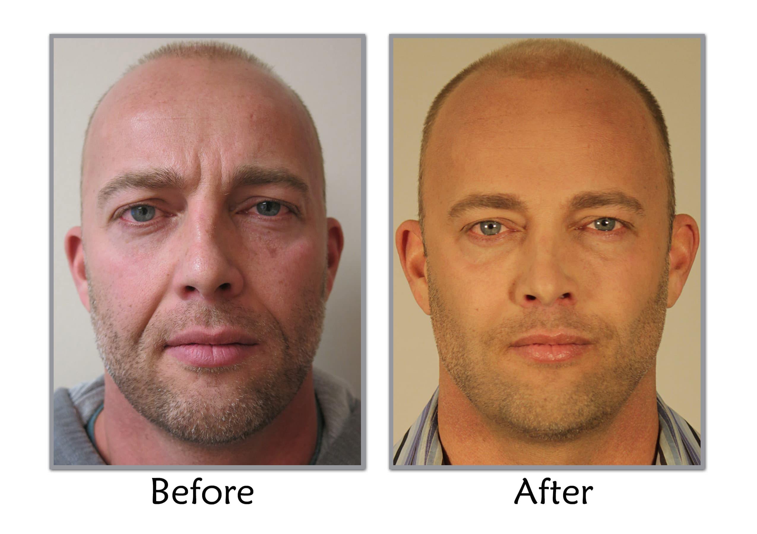 Amazing Facial Before After Men Plastic Surgery 1