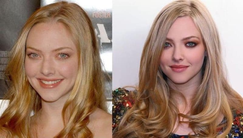 Amanda Seyfried Plastic Surgery Before And After 1