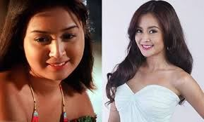 Filipina Actress Before And After Plastic Surgery 1