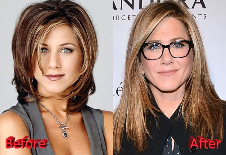 Jenifer Aniston Before And After Plastic Surgery 1
