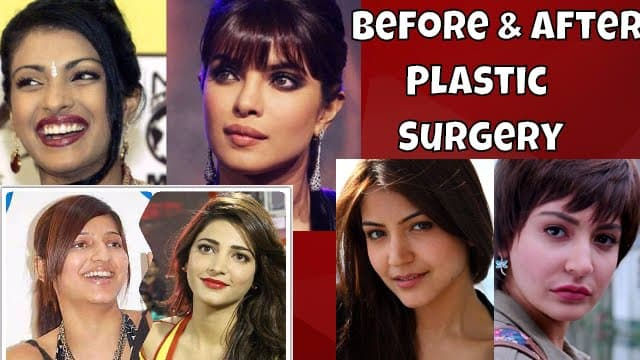 Plastic Surgery Before And After Bollywood Stars 1