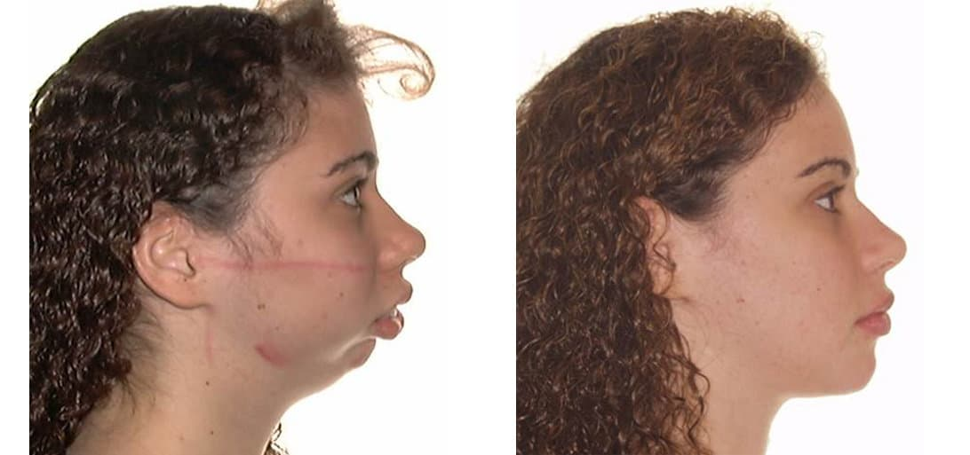Before And After Facial Plastic Surgery Pictures 1