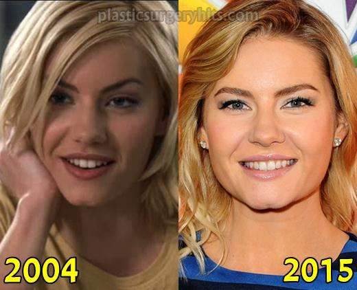 Elisha Cuthbert Before And After Plastic Surgery 1