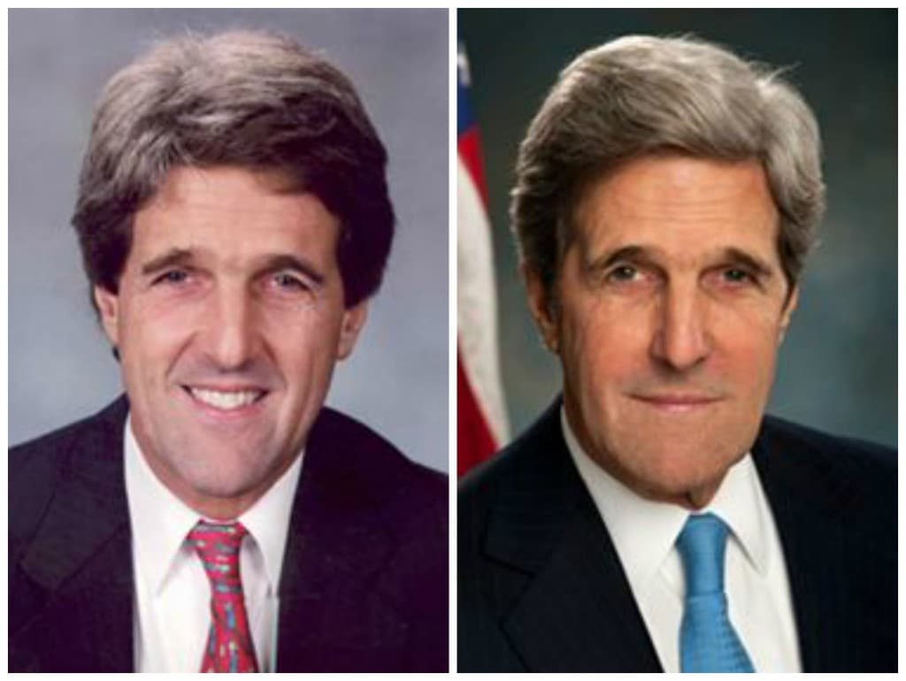 John Kerry Wife Before And After Plastic Surgery 1