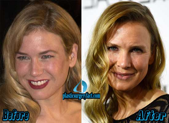 Plastic Surgery For Excess Skin Before And After 1