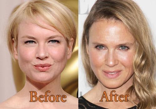 Plastic Surgery Renee Zellweger Before And After 1