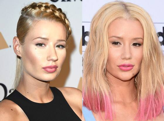 Iggy Azalea Plastic Surgery Before And Afgter