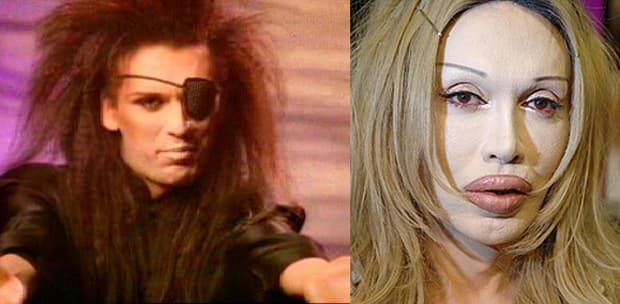 Dead Or Alive Singer Plastic Surgery Before And After photo - 1