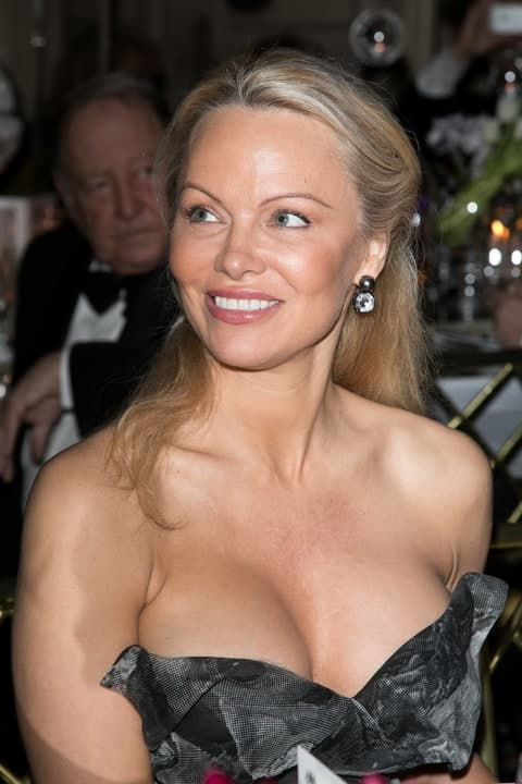 Pamella Sue Anderson Before & After Plastic Surgery photo - 1