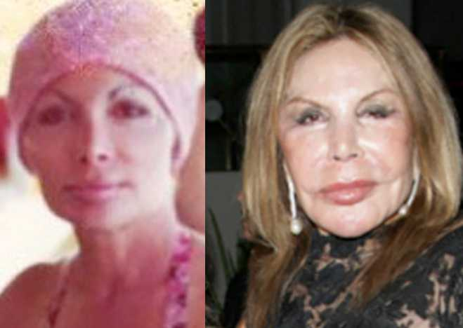 What Did Marysol Mom Look Like Before Plastic Surgery photo - 1