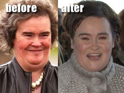 Extreme Makeover Plastic Surgery Before And After 1