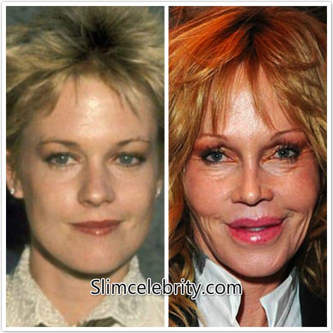 Melanie Griffith Before And After Plastic Surgery 1