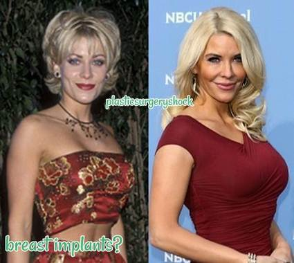 Before And After Celebrity Plastic Surgery Photos 1
