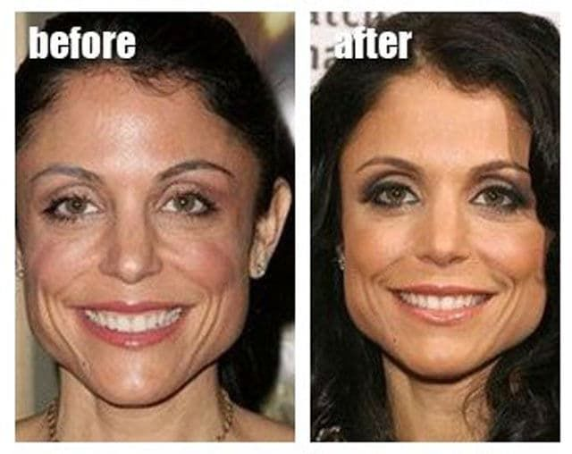 Bethenny Frankel Before And After Plastic Surgery 1