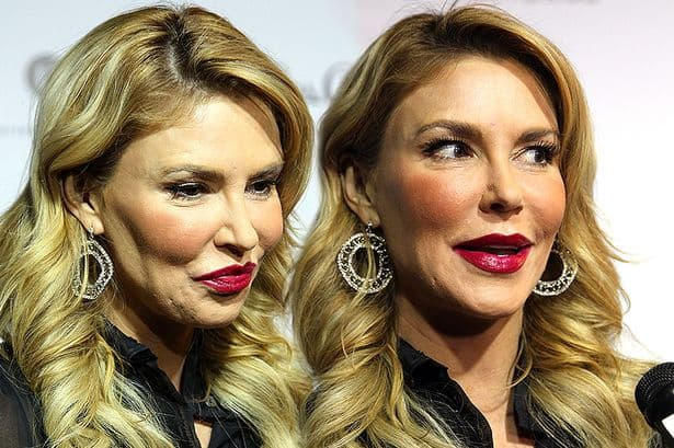 Brandi Glanville Before And After Plastic Surgery 1