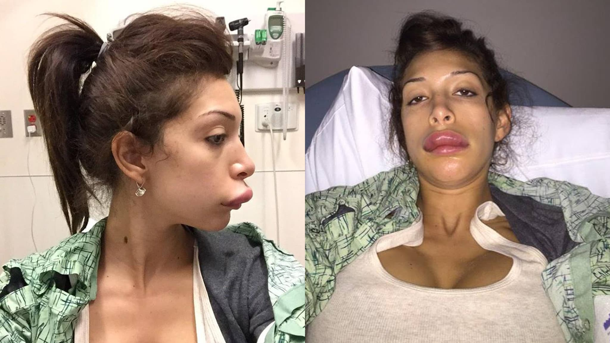 Celebrity Plastic Surgery Fails Before And After 1