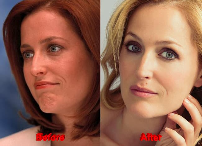 Gillian Anderson Before And After Plastic Surgery 1