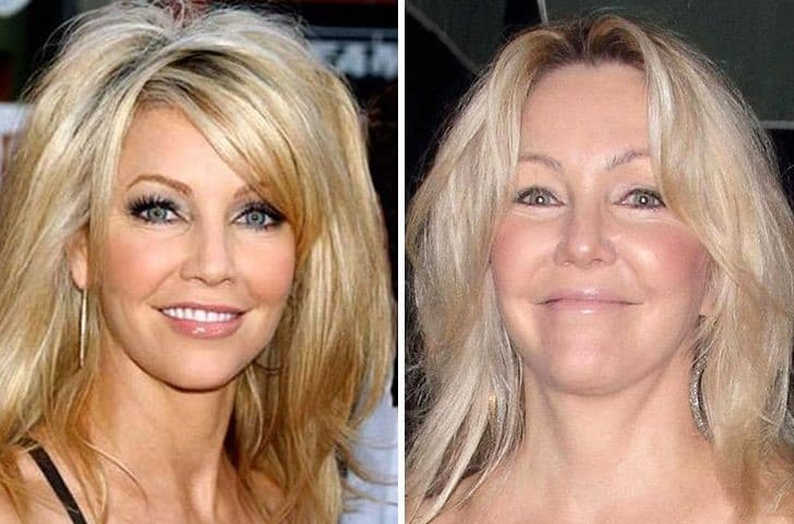 Heather Locklear Plastic Surgery Before And After 1