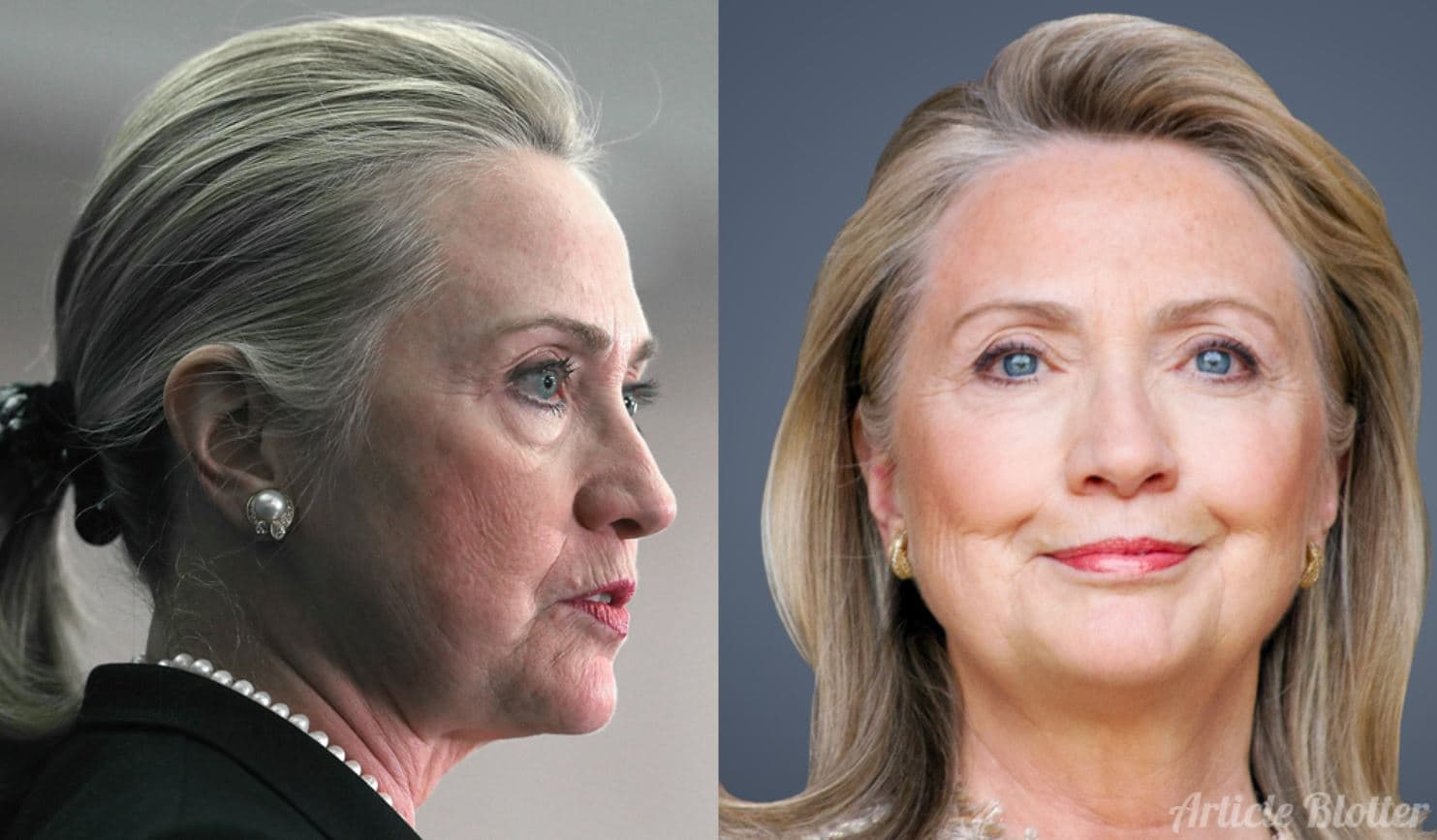 Hillary Clinton Before And After Plastic Surgery 1