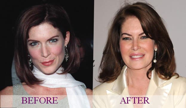 Lara Flynn Boyle Before And After Plastic Surgery 1