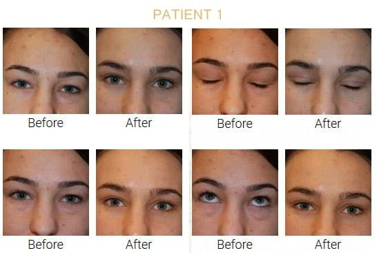 Plastic Surgery Eyelids Before And After Pictures 1