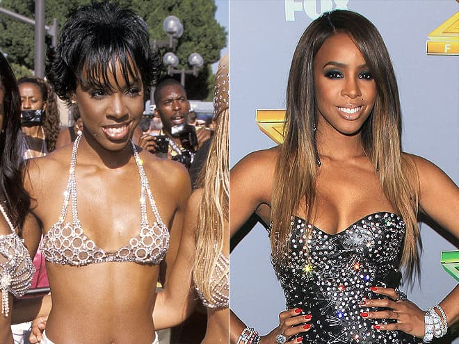 Beyonce Plastic Surgery Before And After Pictures 1