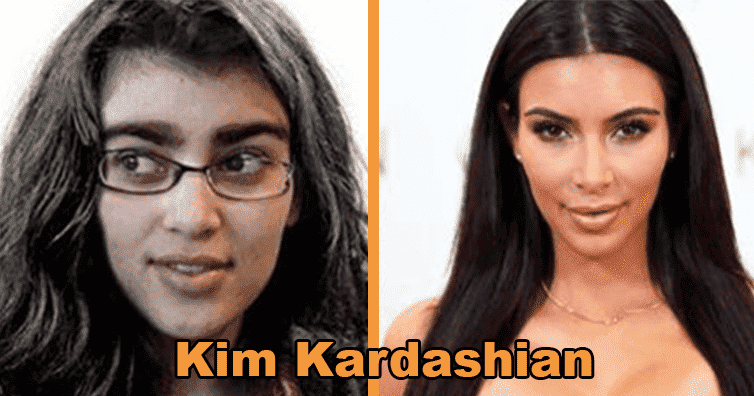 Celebrities Who Were Ugly Before Plastic Surgery 1