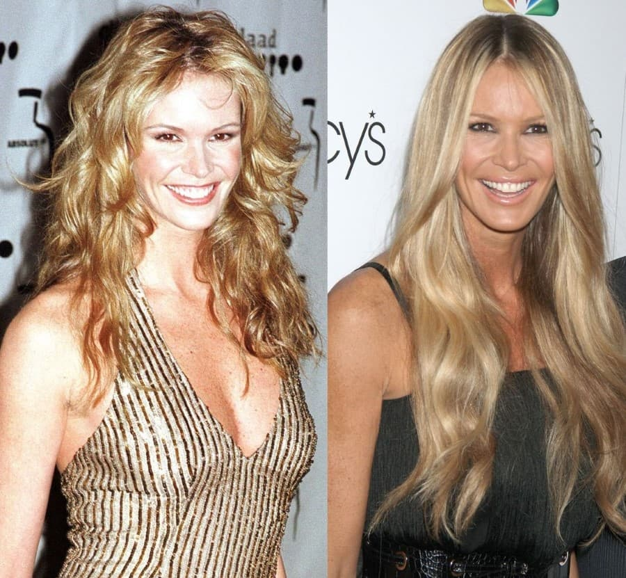 Elle Macpherson Before And After Plastic Surgery 1
