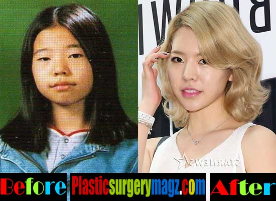 Girls Generation Before And After Plastic Surgery 1