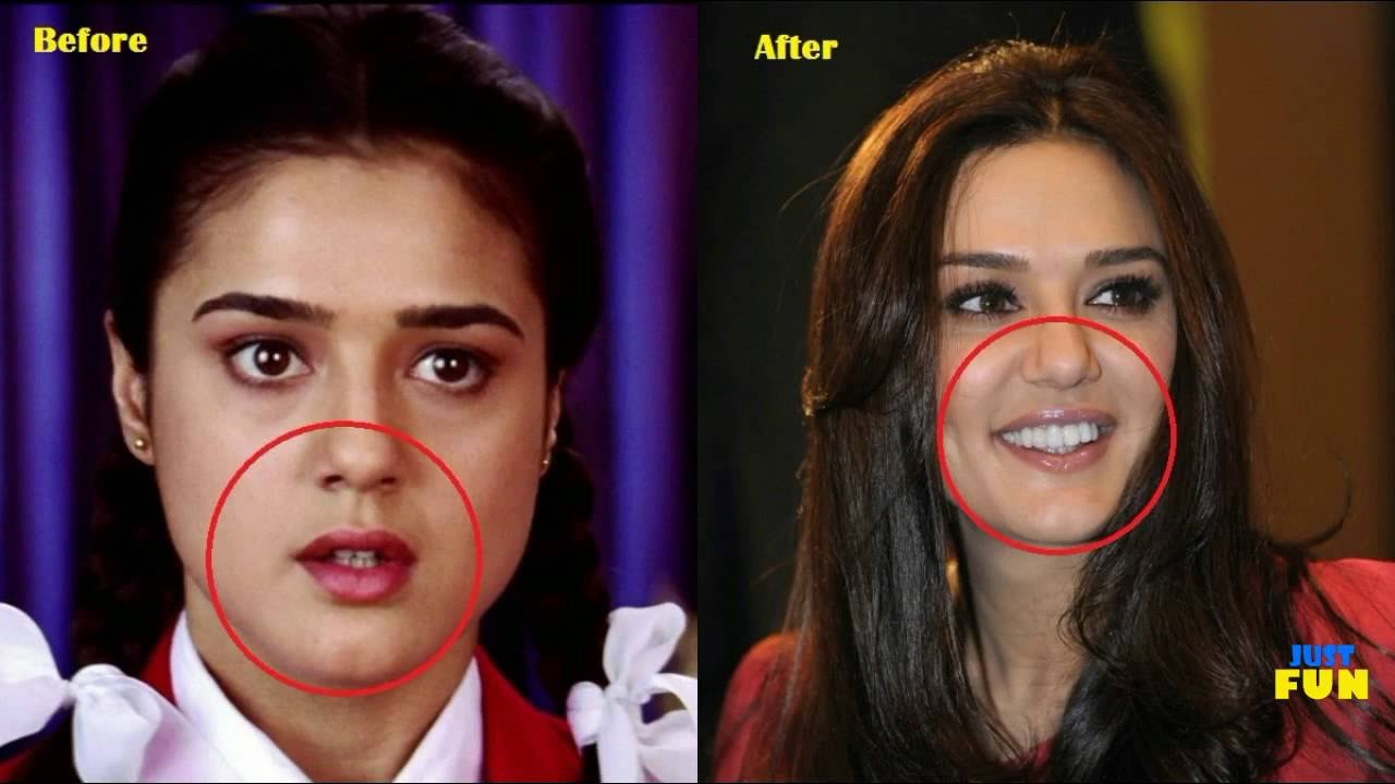 Indian Actresses Before And After Plastic Surgery 1