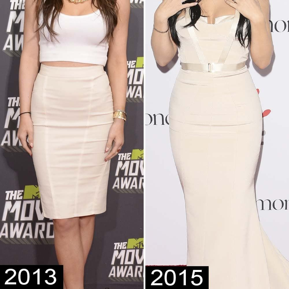 Kylie Kardashian Before And After Plastic Surgery 1