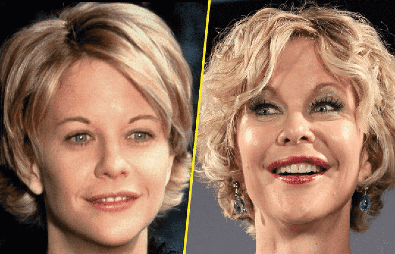 Meg Ryan Before And After Plastic Surgery Photos 1