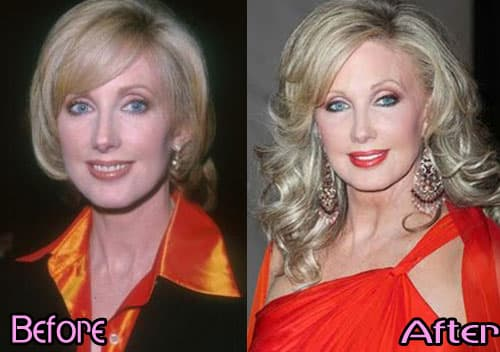 Morgan Fairchild Before And After Plastic Surgery 1