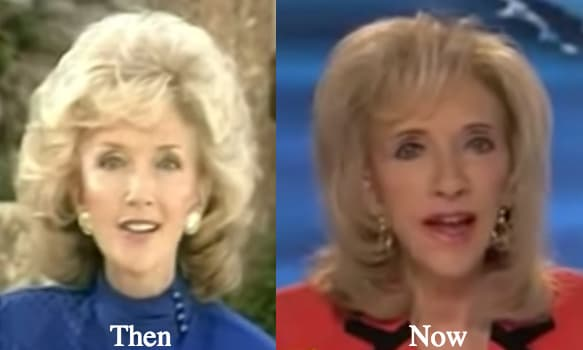 Rexella Van Impe Before And After Plastic Surgery 1