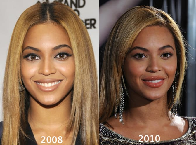 Beyonce Before And After Plastic Surgery Pictures 1
