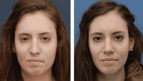 Criteria For Eye Plastic Surgery Before And After 1