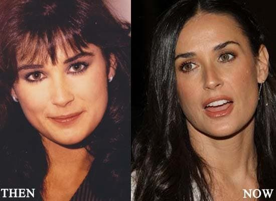 Demi Moor Before And After Plastic Surgery Photos 1