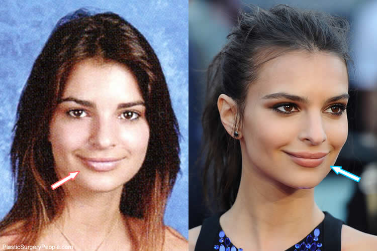 Emily Ratajowski Before And After Plastic Surgery 1