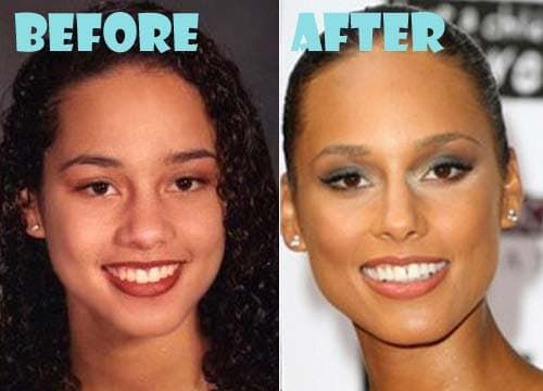 Halle Berry Face Before And After Plastic Surgery 1