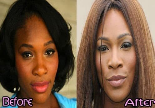 Serena Williams before and after plastic surgery 06