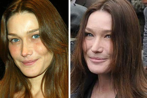 Prima Center For Plastic Surgery Before And After 1