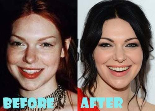 Laura Prepon Plastic Surgery Before And After Pictures photo - 1